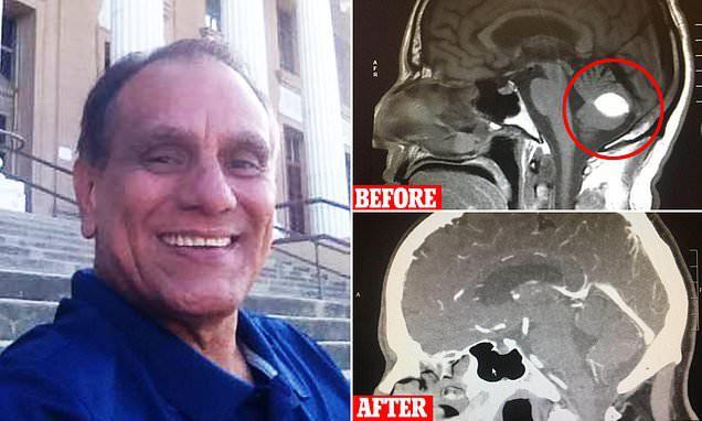 Mỹ: Người đàn ông thấp thỏm chuẩn bị phẫu thuật u não, trước ngày lên bàn mổ, khối u sợ quá biến mất luôn - Ảnh 4.