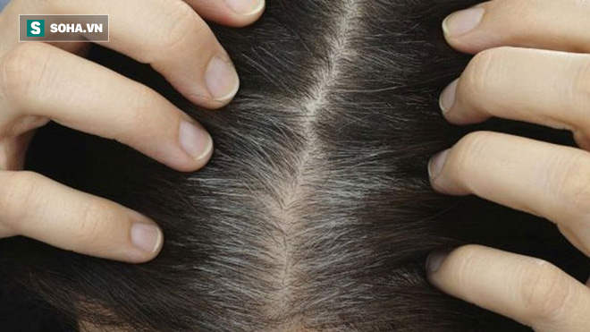 5 nhóm thực phẩm ngăn chặn chứng bạc tóc: Sau tuổi 30 bạn nên ăn để tóc đen mọc nhiều hơn - Ảnh 1.