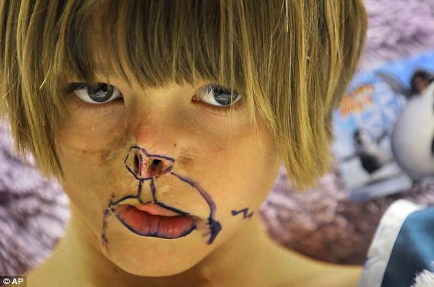 Sự thay đổi ngoạn mục của bé gái bị chồn ăn nửa mặt và ước mơ nhỏ thành hiện thực sau 15 năm - Ảnh 3.