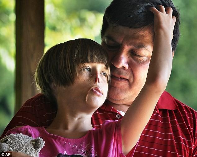 Sự thay đổi ngoạn mục của bé gái bị chồn ăn nửa mặt và ước mơ nhỏ thành hiện thực sau 15 năm - Ảnh 4.