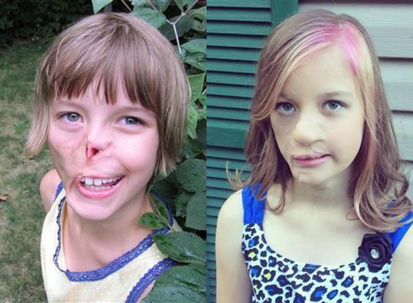 Sự thay đổi ngoạn mục của bé gái bị chồn ăn nửa mặt và ước mơ nhỏ thành hiện thực sau 15 năm - Ảnh 7.