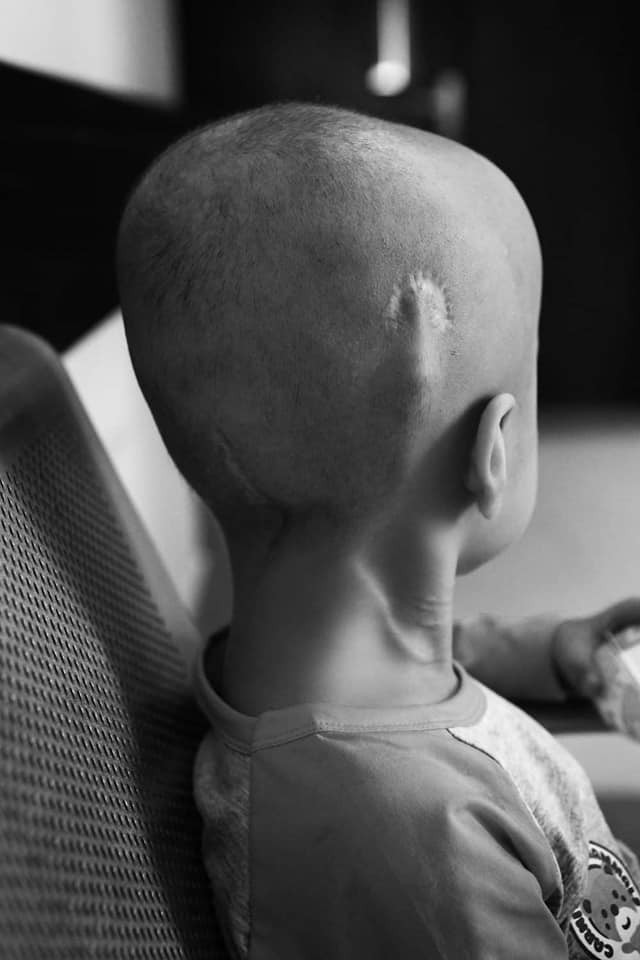 24 giờ của Tom - bộ ảnh xúc động của một người mẹ có con trai bị ung thư não khi mới 33 tháng tuổi - Ảnh 1.