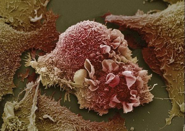 3 dấu hiệu ung thư vú đang tiến triển trong người: Học ngay cách tự khám để phát hiện sớm - Ảnh 1.