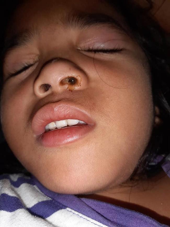 Con gái kêu đau đầu, mẹ nghi con bị dị ứng, tự tiện mua thuốc giảm đau nhưng rồi ngã quỵ khi bác sĩ lấy ra thứ kinh dị này - Ảnh 2.