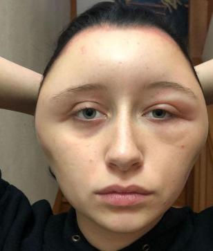 Cô gái xinh đẹp bàng hoàng thấy khuôn mặt mình bị biến dạng sau một đêm, nguyên nhân không ngờ là thứ mà đa số chị em đều dùng - Ảnh 2.