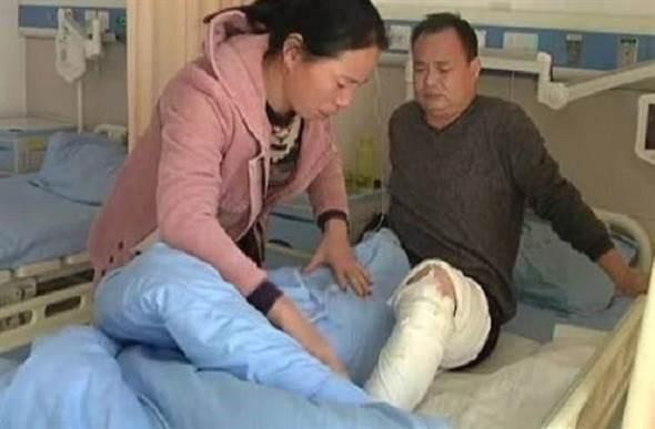 Con gái bị bỏng 80% cơ thể, người cha khẩn nài bác sĩ làm điều này khiến ai nấy đều xúc động - Ảnh 3.