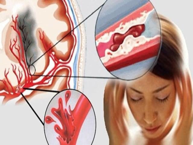 Bác sĩ tim mạch chỉ rõ dấu hiệu đột quỵ cần đưa bệnh nhân cấp cứu ngay lập tức - Ảnh 2.