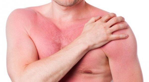 Nguyên nhân gây nóng gan và những lưu ý trong chế độ dinh dưỡng - Ảnh 1.