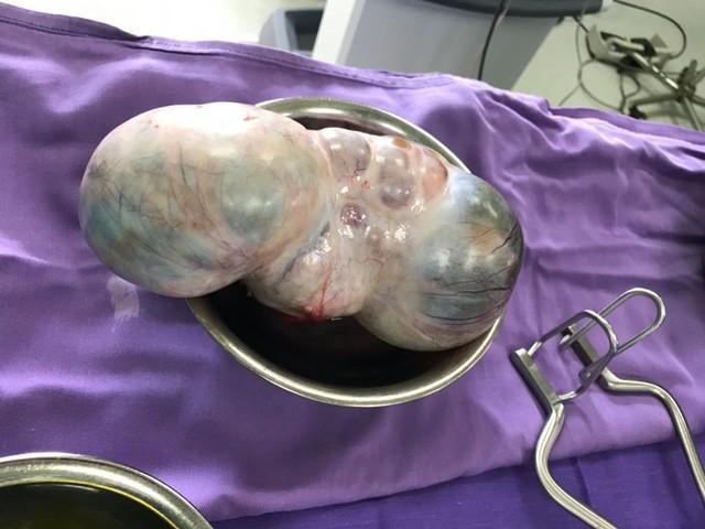 Cận cảnh khối u đe dọa tính mạng bệnh nhân bị ung thư buồng trứng - Ảnh 1.