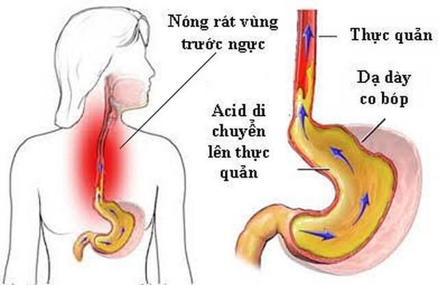 Chuyên gia Tiêu hóa BV Bạch Mai chia sẻ tư thế ngủ tốt cho dạ dày, tránh trào ngược  - Ảnh 1.
