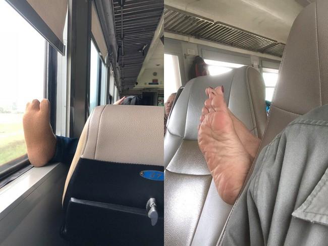 Ám ảnh với những bàn chân hư trên máy bay xe khách, dân mạng mách nhau cách xử lý cao tay - Ảnh 2.