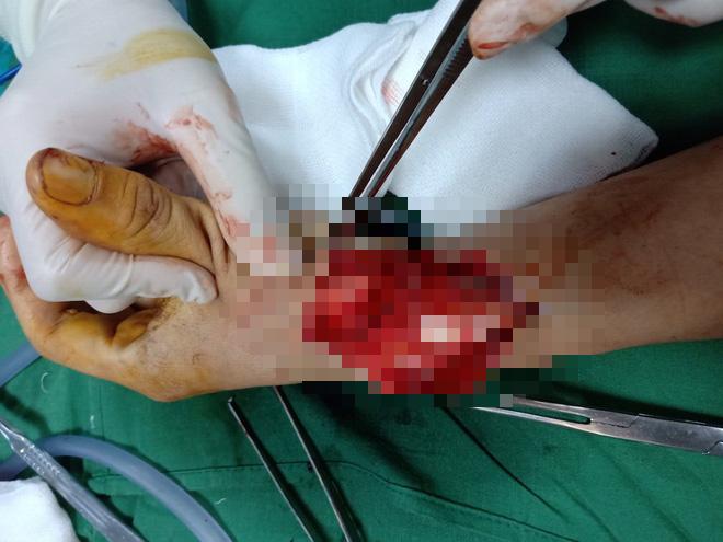 Vụ chặt tay tài xế ô tô: Đã bắt được hung thủ là người đi xe máy - Ảnh 4.