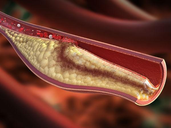 Liệu pháp đơn giản giúp giảm cholesterol - Ảnh 1.