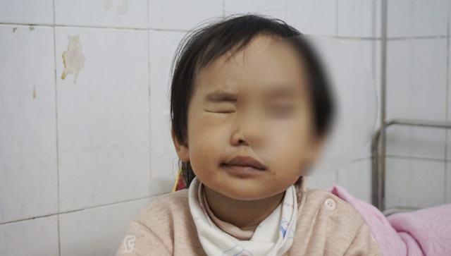 Rét đậm khắc nghiệt, nhiều trẻ liệt mặt, méo miệng vì nhiễm lạnh đột ngột - Ảnh 1.