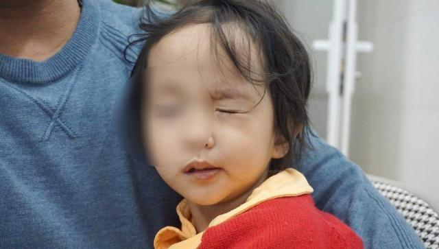 Rét đậm khắc nghiệt, nhiều trẻ liệt mặt, méo miệng vì nhiễm lạnh đột ngột - Ảnh 2.