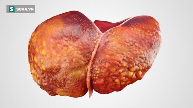 5 nhóm người rất dễ bị bệnh ung thư gan tấn công: Khi phát hiện bệnh thường đã quá muộn - Ảnh 2.