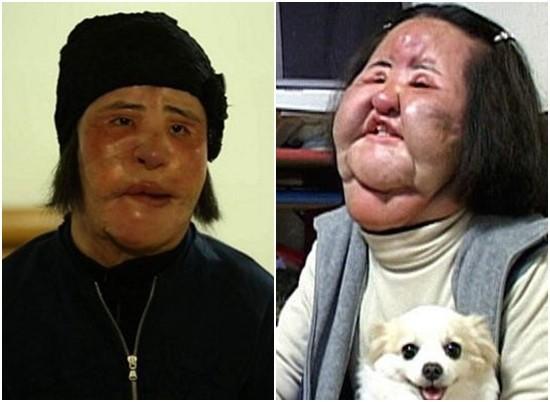 Thảm hoạ dao kéo Han Mi Ok qua đời ở tuổi 57: Tuổi trẻ điên cuồng thẩm mỹ, mua silicon, dầu ăn ở chợ đen về tự tiêm - Ảnh 1.