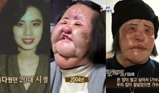 Thảm hoạ dao kéo Han Mi Ok qua đời ở tuổi 57: Tuổi trẻ điên cuồng thẩm mỹ, mua silicon, dầu ăn ở chợ đen về tự tiêm - Ảnh 3.