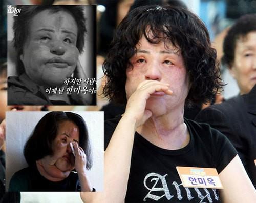 Thảm hoạ dao kéo Han Mi Ok qua đời ở tuổi 57: Tuổi trẻ điên cuồng thẩm mỹ, mua silicon, dầu ăn ở chợ đen về tự tiêm - Ảnh 5.