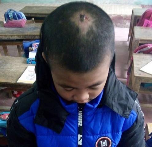 Công an vào cuộc vụ bé trai 10 tuổi bị sư thầy bạo hành - Ảnh 1.