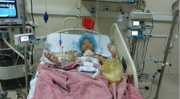 Kỷ lục, Việt Nam thực hiện đồng thời lấy 6 tạng từ người cho chết não, cứu sống 5 bệnh nhân - Ảnh 5.