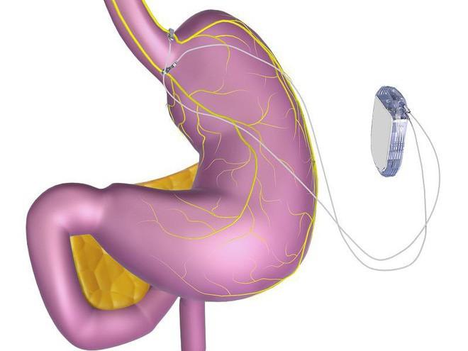 Các nhà khoa học tạo ra một con chip dán vào dạ dày, giúp bạn giảm hoặc tăng cân tùy ý - Ảnh 2.