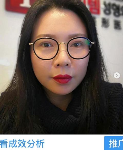 Nhà tạo mẫu tóc nổi tiếng lên tiếng cảnh báo mọi người sau khi sang Hàn Quốc phẫu thuật thẩm mỹ hỏng - Ảnh 3.