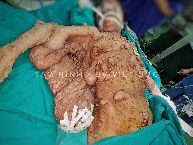 Choáng với hàng trăm khối u chi chít khắp người phụ nữ, phình rộng như cánh đại bàng - Ảnh 2.