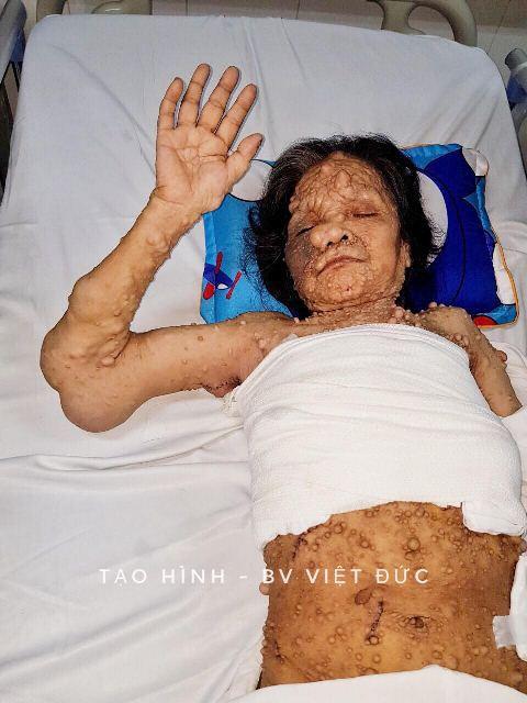 Choáng với hàng trăm khối u chi chít khắp người phụ nữ, phình rộng như cánh đại bàng - Ảnh 3.