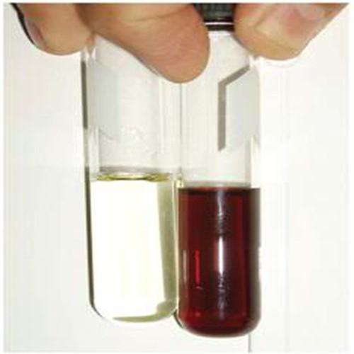 Nước tiểu có màu lạ sau quan hệ: Cảnh giác với những căn bệnh nguy hiểm  - Ảnh 1.