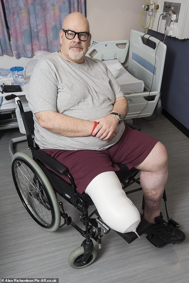 Chỉ vài lần ăn bánh quy và xúc xích, người đàn ông phải cắt cụt chân vì biến chứng của bệnh này - Ảnh 1.