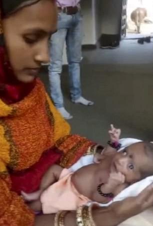 Bé gái Ấn Độ chào đời với 3 bàn tay được người dân tôn thờ như một vị thần - Ảnh 2.