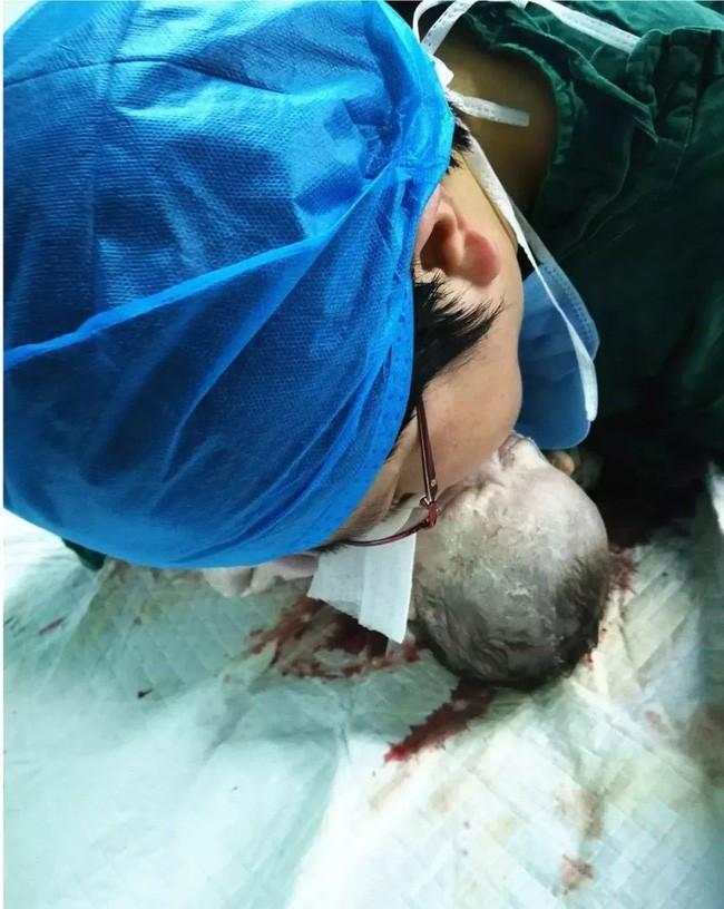 Bé sinh ra có dấu hiệu bất thường, bác sĩ quyết định làm việc này để cứu sống đứa trẻ, tạo nên khoảnh khắc nụ hôn thiên thần đẹp nhất - Ảnh 1.