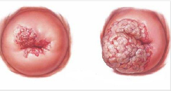 Căn bệnh cứ 2 phút khiến 1 người tử vong: Không quan hệ tình dục sớm là cách phòng bệnh - Ảnh 2.
