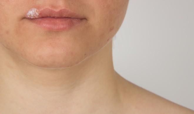 Những thủ phạm làm xuất hiện mụn rộp trên môi bạn cần phải nắm rõ - Ảnh 1.