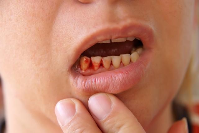Chảy máu bất thường trên cơ thể: dấu hiệu cảnh báo sức khỏe bạn không nên xem thường - Ảnh 1.