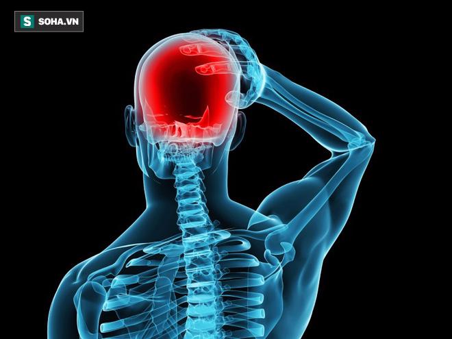 Bác sĩ cảnh báo đừng coi thường những cơn nhức đầu: Đau bao nhiêu lần/tuần thì phải khám? - Ảnh 1.