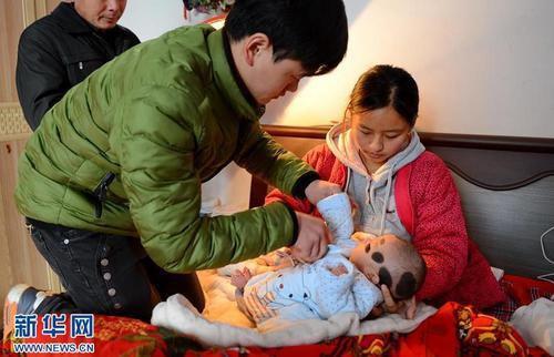Lén uống thuốc thay đổi giới tính thai nhi, mẹ sinh ra con đầy lông lá  - Ảnh 4.