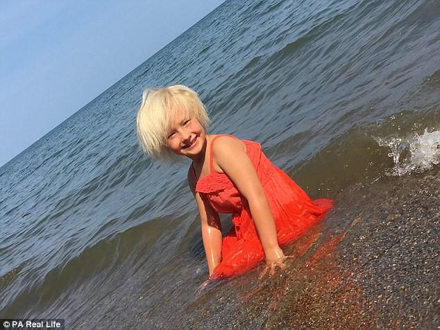 Cô bé 6 tuổi mắc hội chứng hiếm gặp khiến mái tóc dựng đứng bất thường - Ảnh 1.