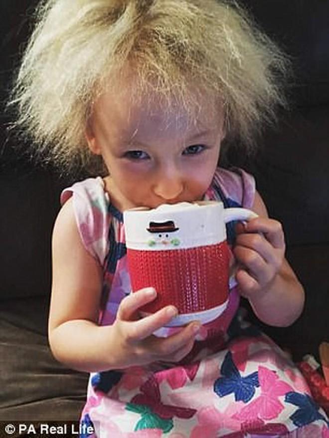 Cô bé 6 tuổi mắc hội chứng hiếm gặp khiến mái tóc dựng đứng bất thường - Ảnh 2.