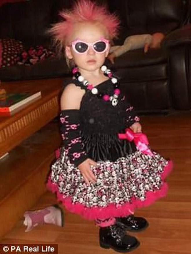Cô bé 6 tuổi mắc hội chứng hiếm gặp khiến mái tóc dựng đứng bất thường - Ảnh 3.