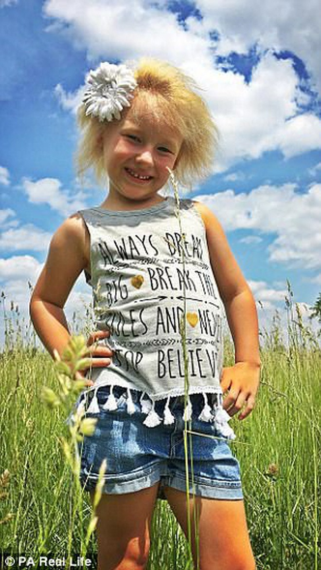 Cô bé 6 tuổi mắc hội chứng hiếm gặp khiến mái tóc dựng đứng bất thường - Ảnh 4.