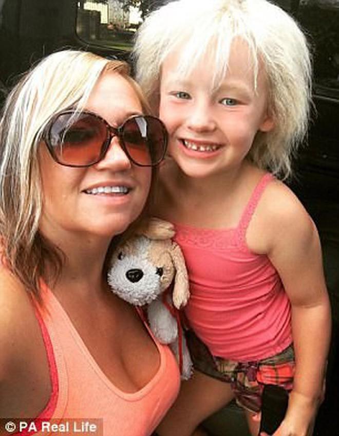Cô bé 6 tuổi mắc hội chứng hiếm gặp khiến mái tóc dựng đứng bất thường - Ảnh 5.