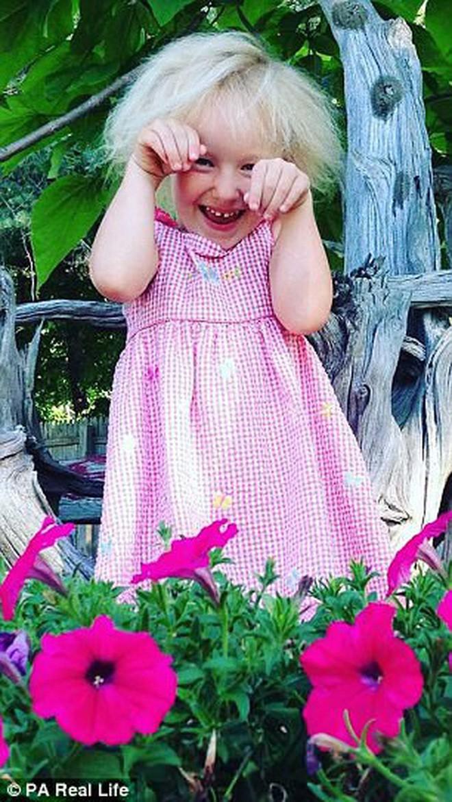 Cô bé 6 tuổi mắc hội chứng hiếm gặp khiến mái tóc dựng đứng bất thường - Ảnh 10.