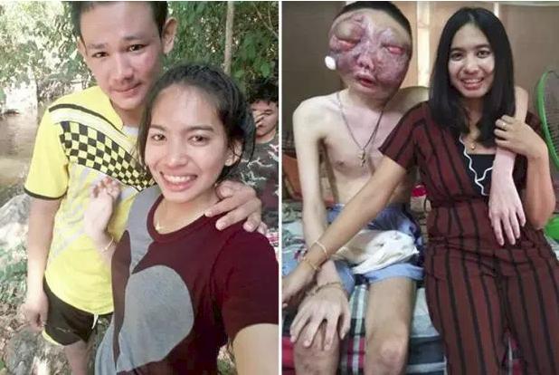 Dù chồng bị ung thư với khuôn mặt biến dạng, vợ vẫn một lòng ở bên chăm sóc: 3 năm, em vẫn yêu anh như ngày đầu - Ảnh 1.