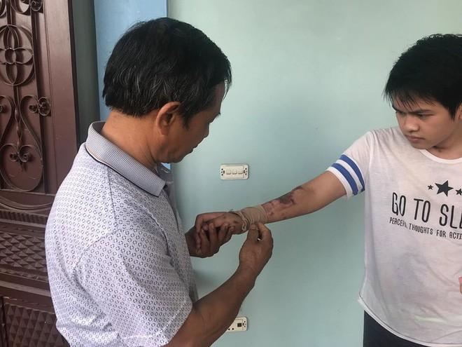 Cậu bé 16 tuổi sống sót sau vụ cháy xưởng bánh kẹo khiến 8 người tử vong ở Hà Nội bây giờ ra sao - Ảnh 4.