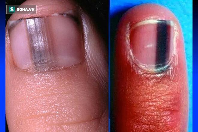 Cảnh giác ngay khi thấy trên móng tay có dấu hiệu bất thường này - Ảnh 1.
