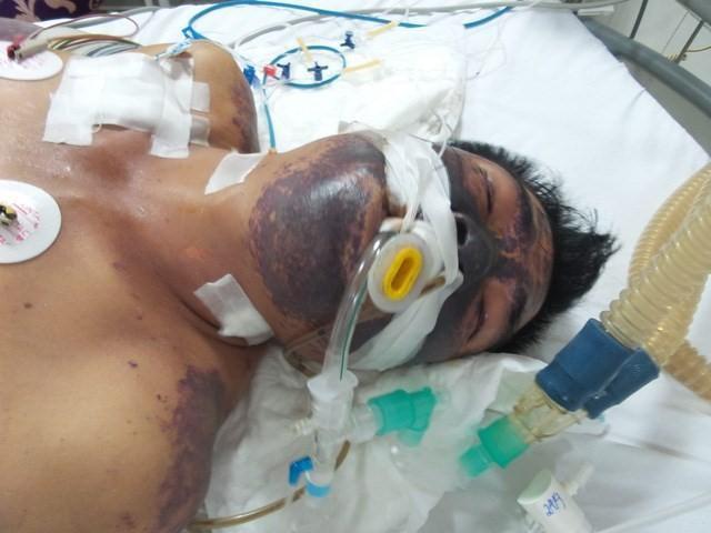 Ăn tiết canh chưa thấy may mắn đã mất Tết vì nhập viện cấp cứu - Ảnh 2.