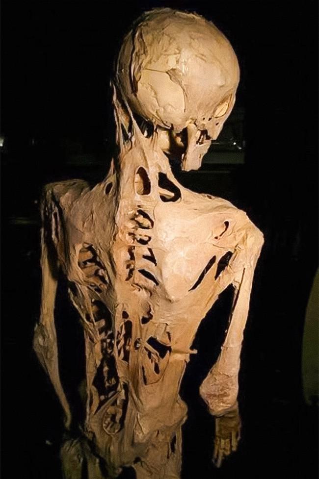 7 căn bệnh lạ lỡ mắc phải chỉ có phát khóc bởi bác sĩ cũng bó tay - Ảnh 1.