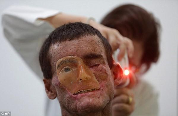 7 căn bệnh lạ lỡ mắc phải chỉ có phát khóc bởi bác sĩ cũng bó tay - Ảnh 4.